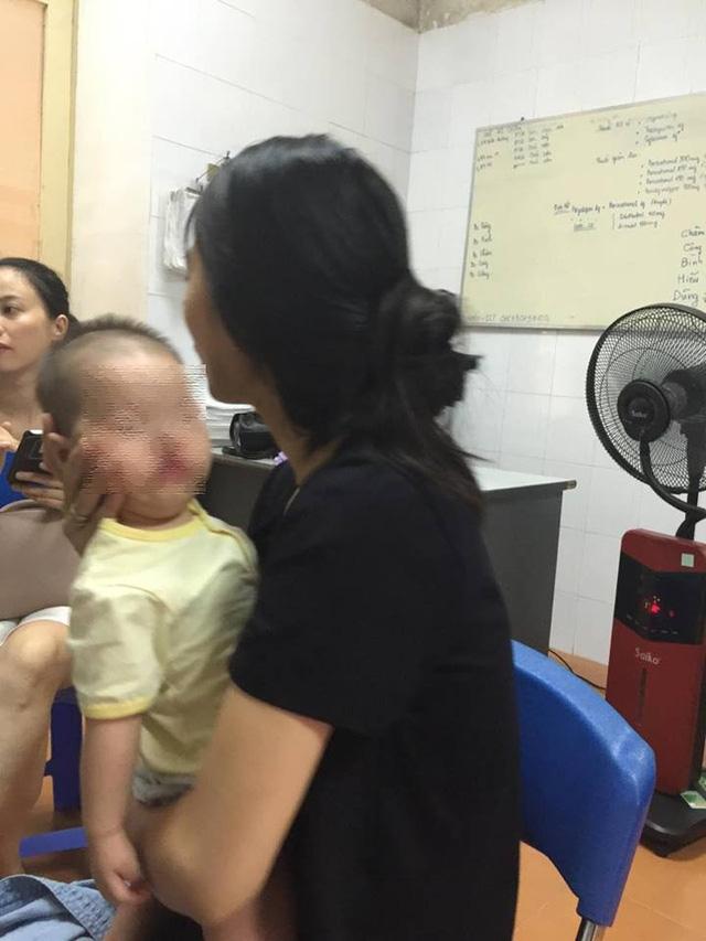 Bé V.M đang điều trị tại khoa Phẫu thuật, tạo hình hàm mặt, bệnh viện Việt Nam Cu Ba. Ảnh: Võ Thu