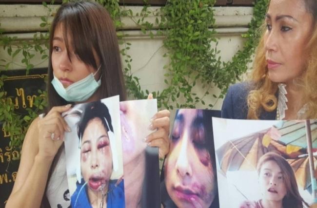 Đang xinh đẹp, người mẫu Thái bỗng hỏng miệng, sụp má vì phẫu thuật thẩm mỹ hỏng - Ảnh 2.