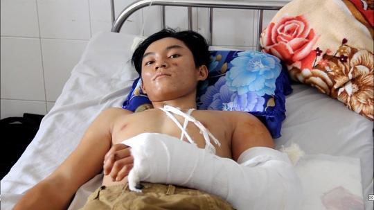 Anh Nhẫn đang điều trị tại Bệnh viện Đa khoa Trung ương Cần Thơ