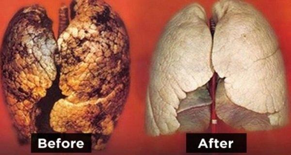 ung thư phổi, ngừa ung thư phổi, detox 3 ngày ngừa ung thư phổi, thải độc tố ở phổi