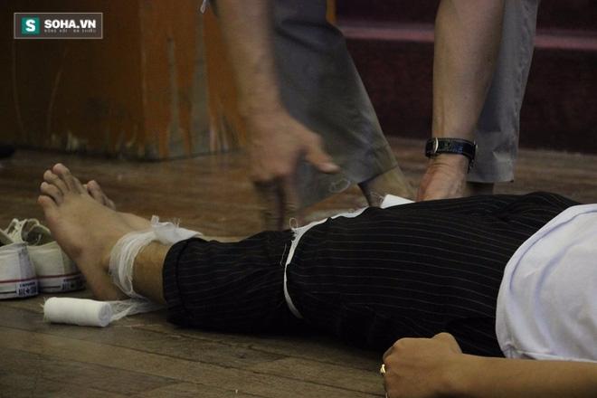 Hướng dẫn chính xác các bước sơ cứu khi bị cắt đứt mạch máu - Ảnh 6.