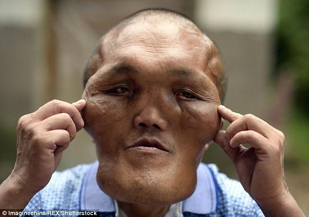 Người đàn ông mặc cảm vì khuôn mặt dị dạng như người ngoài hành tinh - Ảnh 1.