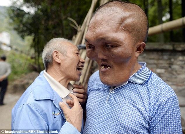 Người đàn ông mặc cảm vì khuôn mặt dị dạng như người ngoài hành tinh - Ảnh 2.