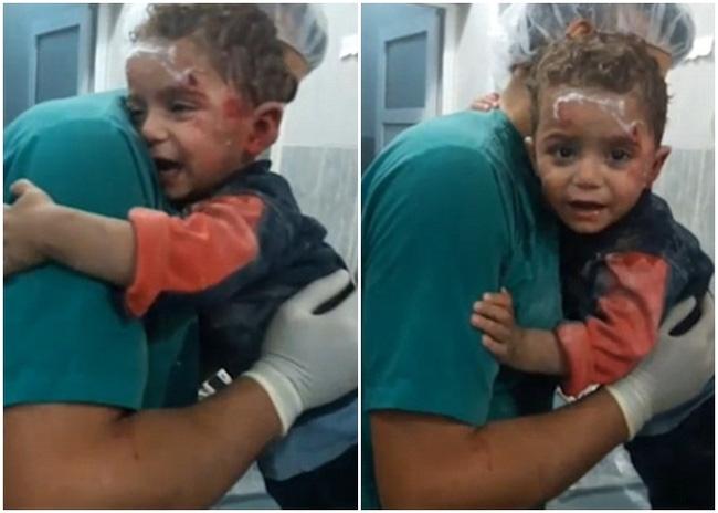 Đau lòng trước hình ảnh cậu bé Syria người đầy máu tuyệt vọng ôm chặt lấy y tá không chịu buông sau trận không kích - Ảnh 2.