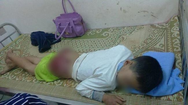 Hình ảnh gây phẫn nộ: Bé trai 13 tuổi bị cha ruột đánh tứa máu - Ảnh 2.
