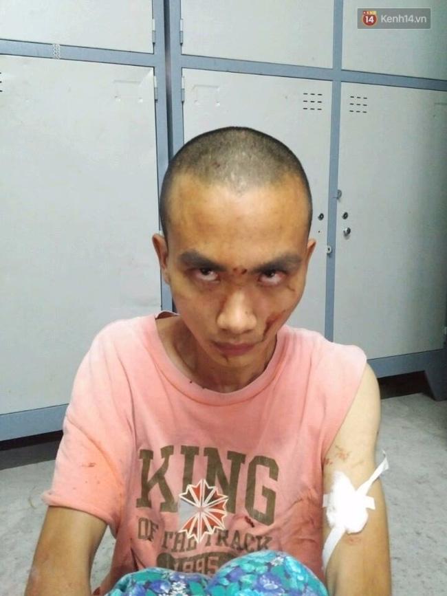 Nghi vấn đối tượng truy sát nhiều người trong chùa Bửu Quang có sử dụng chất kích thích - Ảnh 1.