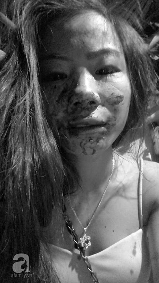 Gương mặt bê bết máu của người vợ trẻ đẹp tố chồng nghiện ngập, đánh đập thậm tệ đến dập mũi, dãy xương sườn