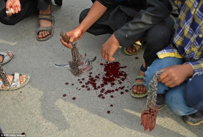 Rạch đầu trẻ nhỏ, nghi lễ rửa tội rùng rợn của người Hồi giáo - Ảnh 10.