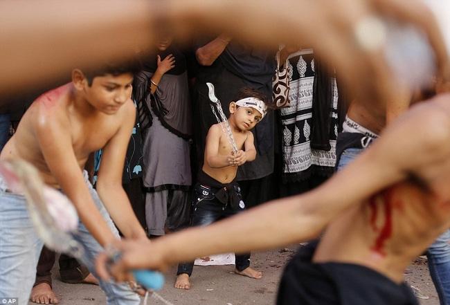 Rạch đầu trẻ nhỏ, nghi lễ rửa tội rùng rợn của người Hồi giáo - Ảnh 11.