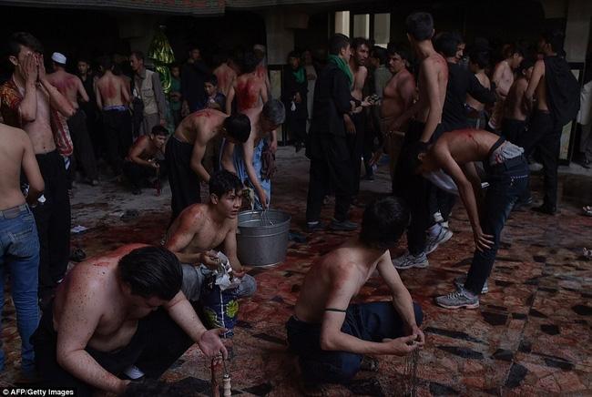 Rạch đầu trẻ nhỏ, nghi lễ rửa tội rùng rợn của người Hồi giáo - Ảnh 12.