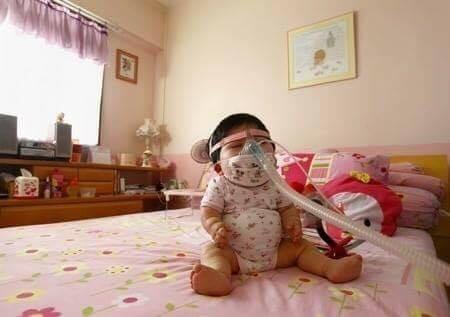 Cơ thể của em không thể phát triển một cách bình thường, cụ thể là chân tay của Pei Shan sẽ ngắn hơn so với chiều dài chuẩn. (Ảnh: QQ)