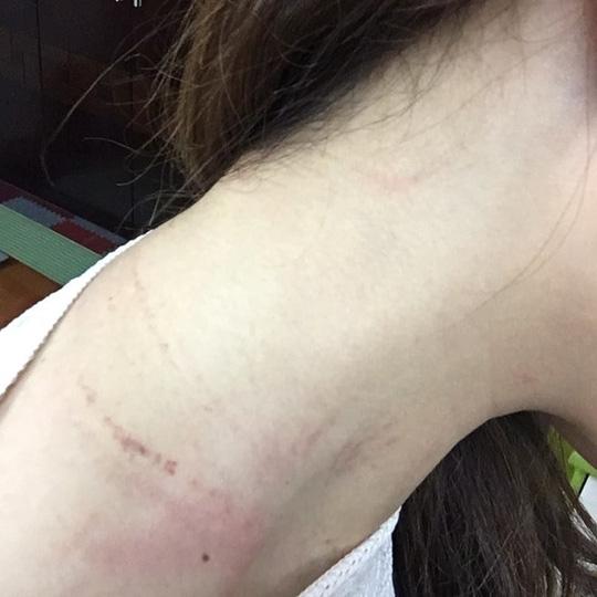 Nữ nhân viên hàng không của Vietnam Airlines bị hành khách túm áo, đánh vào cổ và đầu