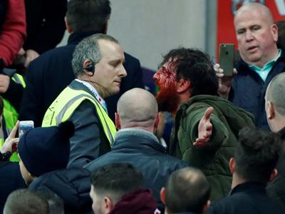 Fan tuyển Anh và Scotland choảng nhau sứt đầu mẻ trán