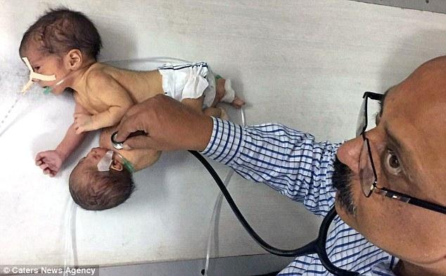Cặp song sinh ký sinh chào đời ở Ấn Độ - 2