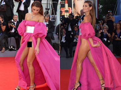 Các người đẹp gây phản cảm vì mặc váy hở hang