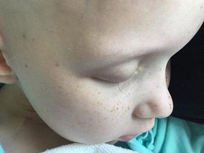 """Điều kỳ diệu xảy ra với bé gái ung thư trong bức ảnh """"sợi lông mi cuối cùng"""" nổi tiếng"""