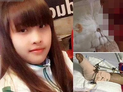 Con gái bị tai nạn có nguy cơ phải cắt cụt chân, cha nghèo cắm sổ đỏ vay tiền chữa trị