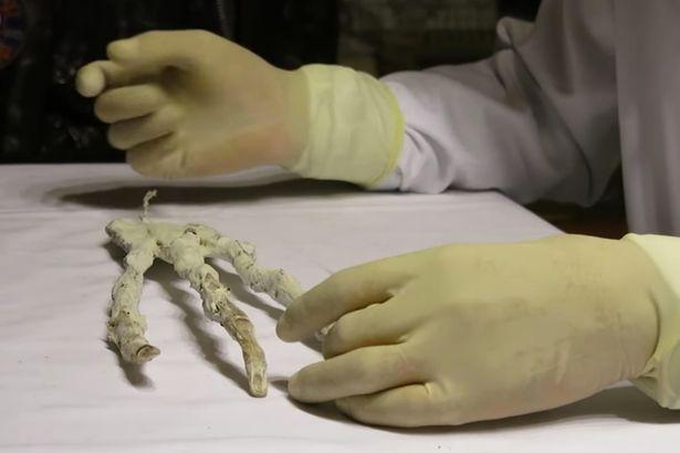 Tìm thấy cánh tay 3 ngón của người ngoài hành tinh? - 1