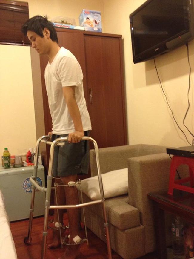 Chàng trai phẫu thuật kéo chân từ 1m67 lên 1m76: Vẫn cõng được người yêu như thường! - Ảnh 5.