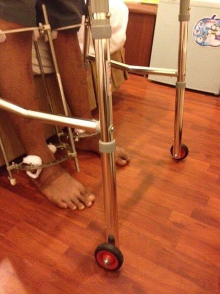 Chàng trai phẫu thuật kéo chân từ 1m67 lên 1m76: Vẫn cõng được người yêu như thường! - Ảnh 7.