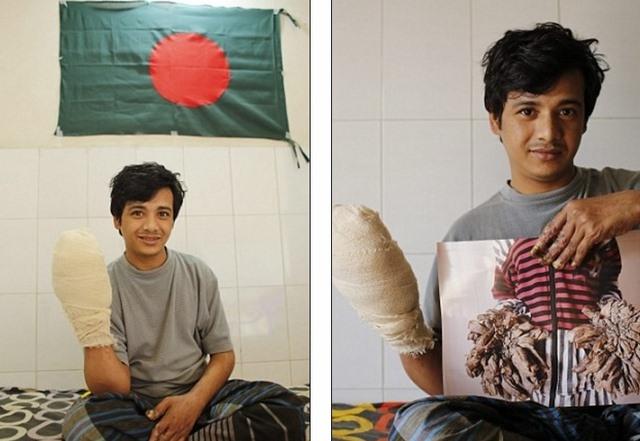 Abul được tháo bỏ rễ cây sau 16 lần phẫu thuật.
