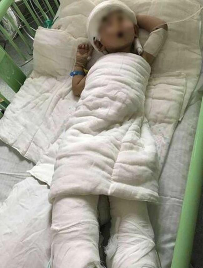 Mẹ cạo đầu, lột da để cứu con trai 2 tuổi bị bỏng nặng vì ngã vào nồi nước sôi - Ảnh 1.