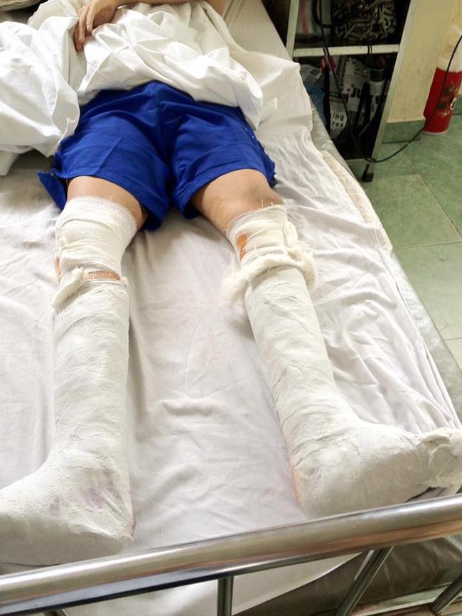 Nhật ký kéo dài chân từ 1m67 đến 1m76 (9 cm) của chàng trai Hà Nội - Ảnh 7.