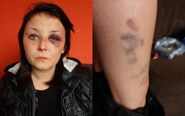 Kỷ niệm 1 năm hẹn hò, thanh niên uống gần 9 lít bia rồi đánh đập, kéo lê bạn gái trên đường - Ảnh 2.