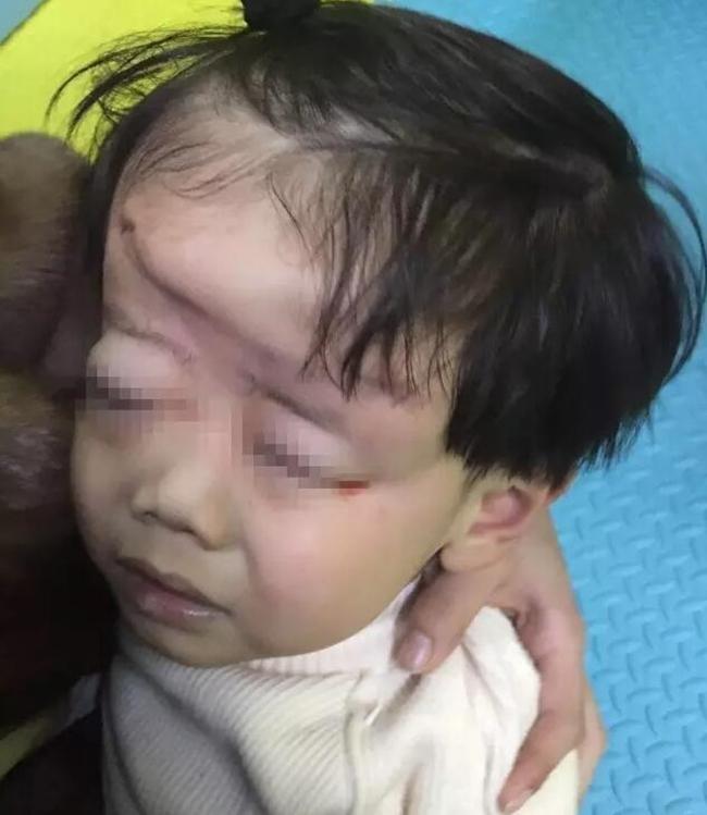 Mẹ mải xem điện thoại, con 4 tuổi bị xe cán biến dạng đầu, hôn mê nhiều ngày trong bệnh viện