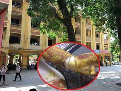 Sở GD-ĐT Hà Nội chỉ đạo xử lý nghiêm cá nhân liên quan đến vụ nổ khiến nữ sinh Phan Đình Phùng bị bỏng