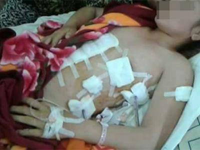 Đánh ghen ngược: Người vợ trẻ bị người tình của chồng dùng dao đâm thấu ngực đúng 30 Tết