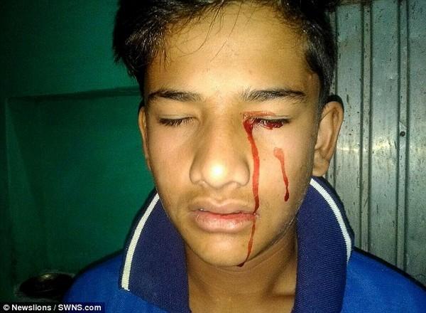 Cậu bé Akhilesh bắt đầu khóc ra máu từ năm lên 10 tuổi