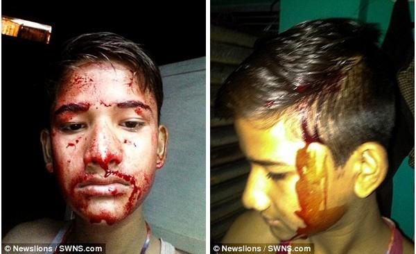 Sau 3 năm, máu chảy ra từ khắp các bộ phận trên cơ thể cậu bé