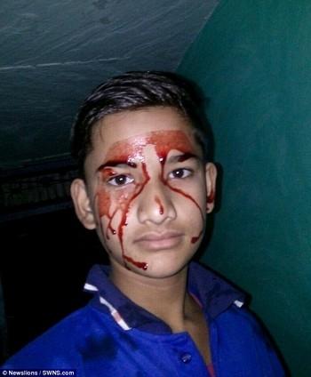 Các bác sĩ tại Ấn Độ đang bất lực trong việc chẩn đoán nguyên do tình trạng của cậu bé Akhilesh