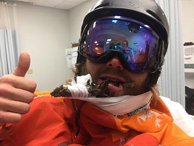 Mỹ: Cành cây dài 45cm đâm xuyên mồm người trượt tuyết