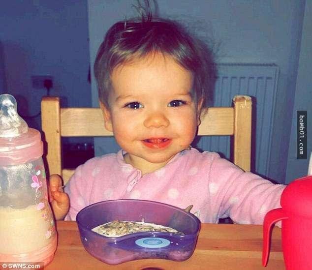Bé gái 18 tháng tuổi bị chó cắn vì hôn chó và bài học cho  phụ huynh khi cho con tiếp xúc với động vật - Ảnh 4.
