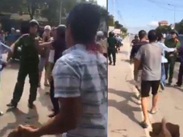 Nguyên nhân vụ 2 thanh niên tấn công cảnh sát: Do gậy chuyên dụng vô tình va quệt vào đầu!