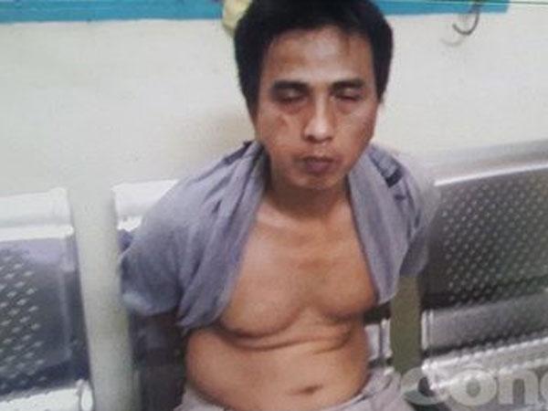 Hiệp sĩ Minh Tiến bị phơi nhiễm HIV khi truy bắt tên cướp liều lĩnh