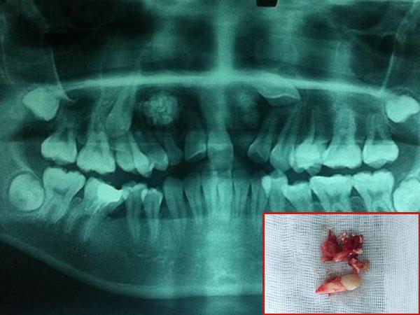 14 tuổi vẫn còn răng sữa, đi khám phát hiện u răng với hàng chục chiếc răng nhỏ