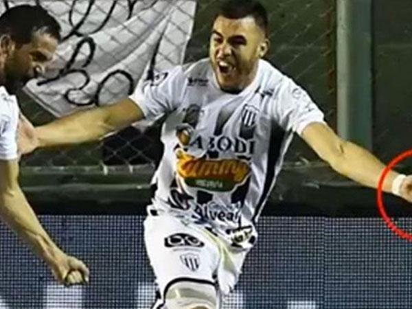 Cầu thủ Argentina dùng kim khâu chích đối thủ giữa trận đấu