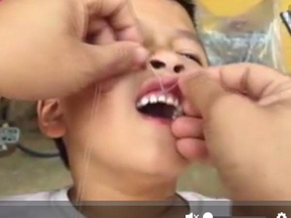 Ông bố Ninh Bình nhổ răng cho con bằng xe máy