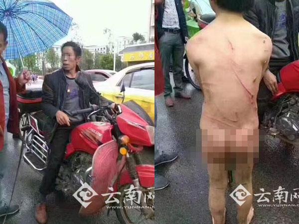 Bé trai bị bố đánh đập, bắt cởi quần áo chạy theo xe máy dưới mưa