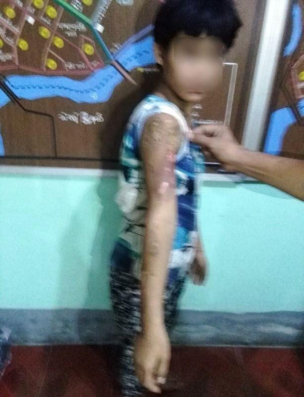 Cô bé 13 tuổi đi làm giúp việc bị chủ nhà dùng bàn là nóng bạo hành rồi đổ nước sôi lên người - Ảnh 3.