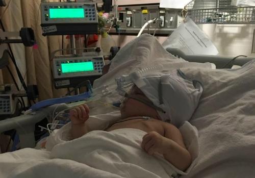 Bé Isabelle khi đang điều trị bệnh ho gà. Ảnh: Huffington Post.
