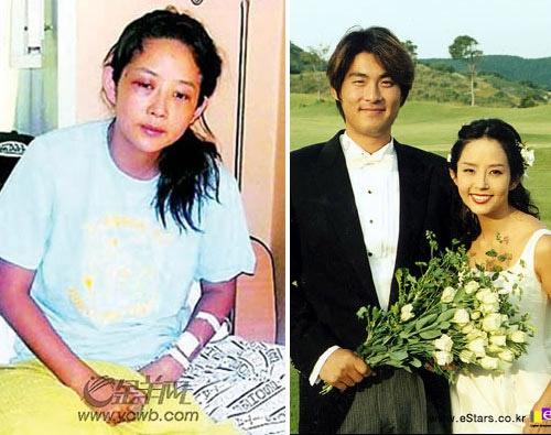 Con gái của Choi Jin Sil tiết lộ thêm bị bà ngoại đưa vào bệnh viện tâm thần - Ảnh 3.