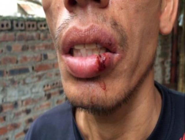 Tài xế Quảng khẳng định, môi bị chảy máu do bị va đập chứ không phải bị CSGT hành hung. Ảnh: (Nhân vật cung cấp)