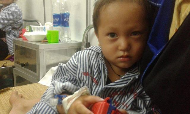 Con mắt bên trái của bé tuy đã qua phẫu thuật lần 2 nhưng vẫn khó có cơ hội được sáng trở lại. Ảnh: Nông Thuyết