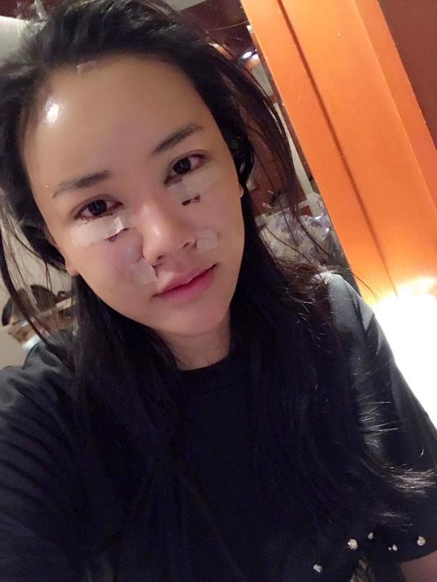 Sau ca phẫu thuật 600 triệu đồng, Maya tiếp tục dao kéo gương mặt lần 2, công khai gương mặt sưng phù - Ảnh 3.
