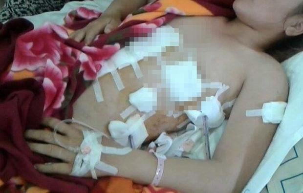 Đi gặp bồ nhí của chồng, người vợ bị đâm thương tích 75% - Ảnh 1.