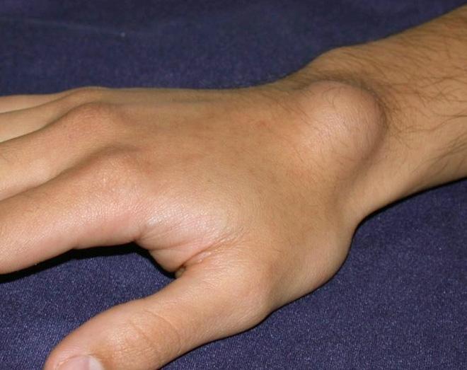 Bỗng xuất hiện cục nổi trên cổ tay, đừng vội vàng bỏ qua vì đó là dấu hiệu cảnh báo bệnh vô cùng hãi hùng - Ảnh 1.